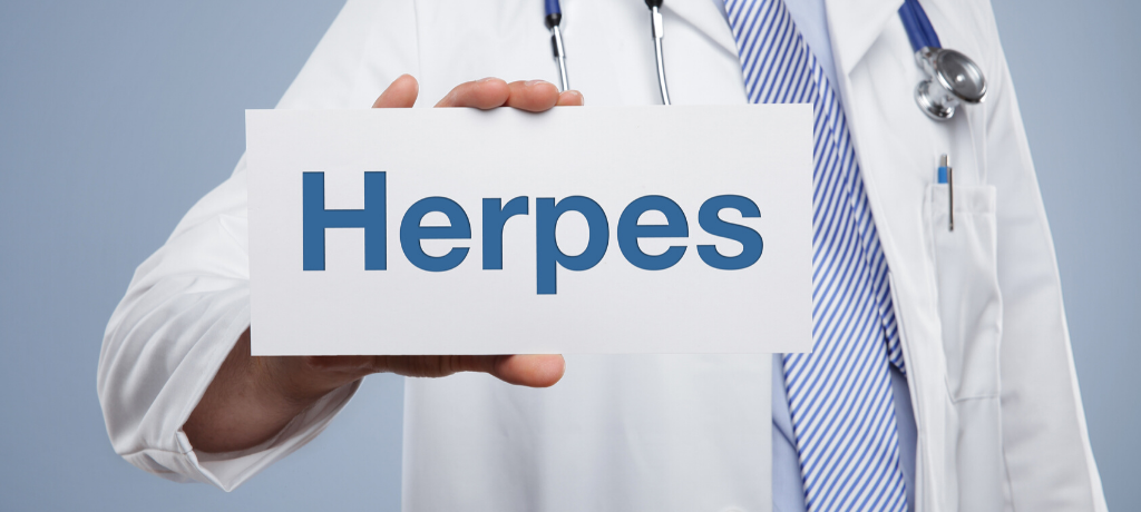3 Common Myths for Herpes to be Debunked Immediately